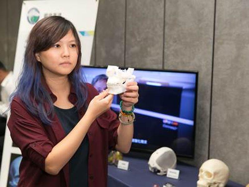 陳小姐接受3D列印輔助正顎手術,目前已恢復正常生活,重拾自信心。