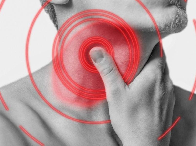 口臭,喉嚨卡卡……可能是扁桃腺結石圖片
