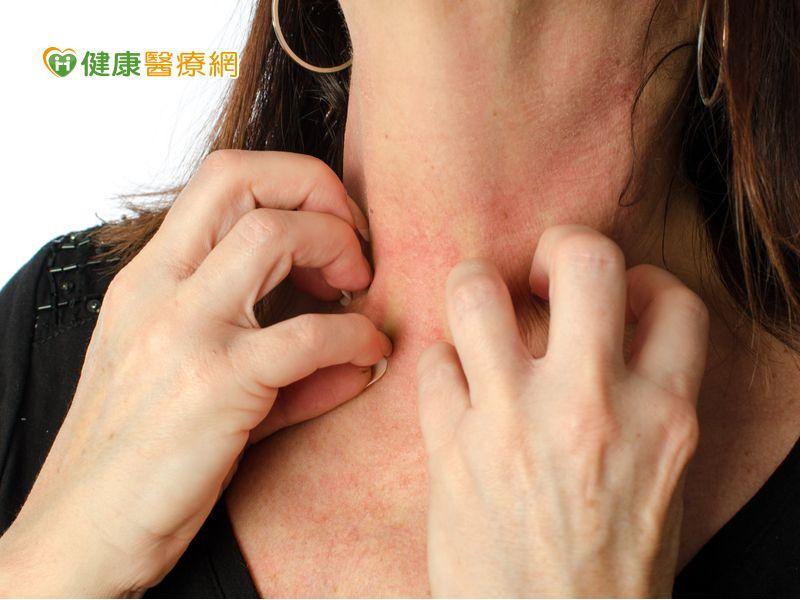 異位性皮膚炎好癢 4步驟急救乾癢肌