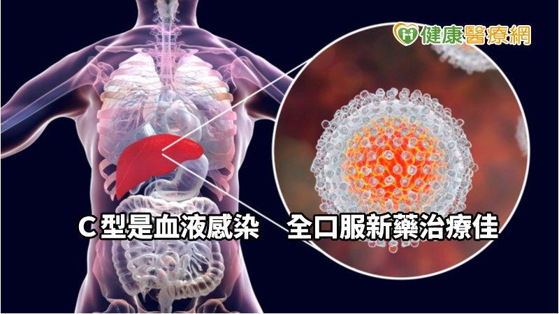 9旬C肝爺怕痛拒治療 全口服C肝新藥助治癒