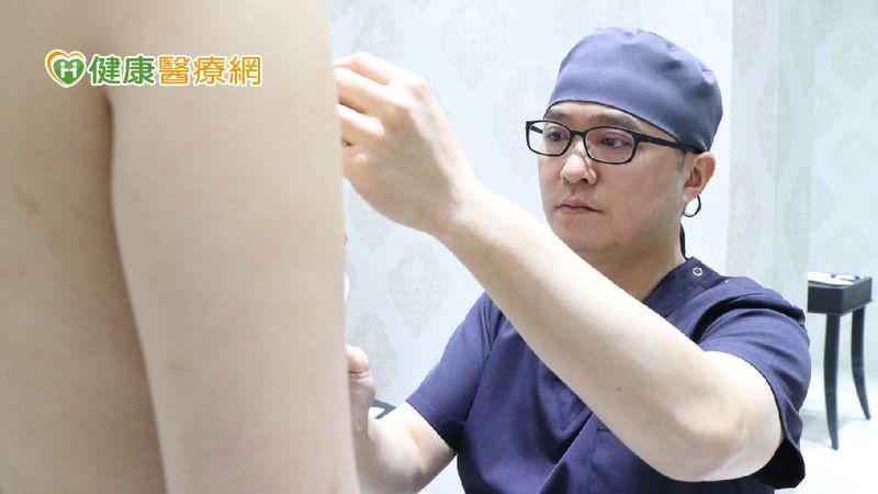 產後婦女乳房下垂 隆乳手術告別鬆垮布袋奶