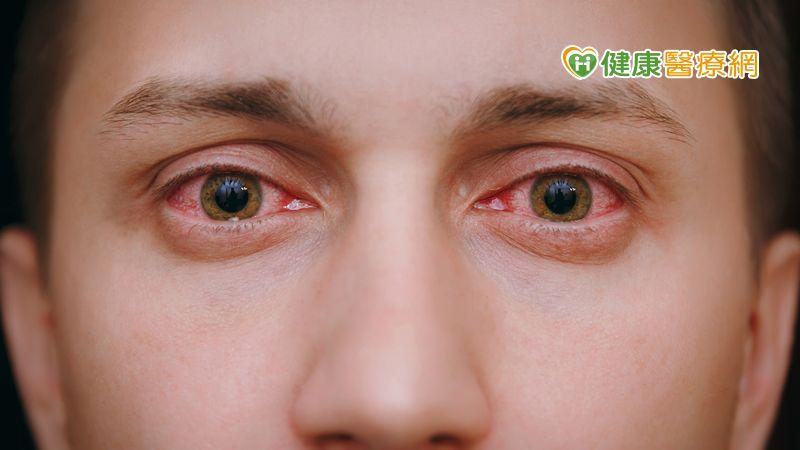 中秋烤肉紅眼如月兔,醫師授護眼技巧拒當乾眼糊矇族
