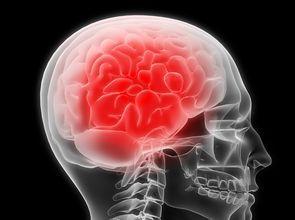 記憶力衰退是老年人中風的前兆