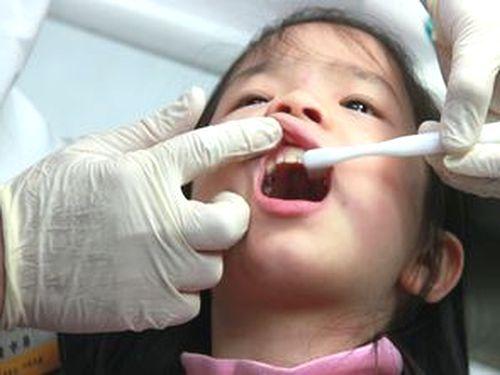 儿童蛀牙图片儿童牙齿蛀牙图片