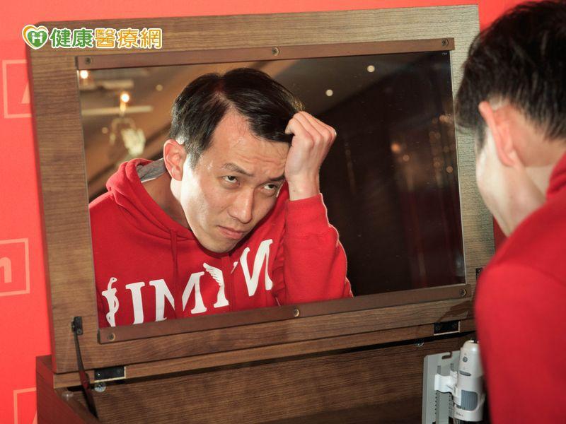台灣年輕人掉髮情況 比中、韓嚴重