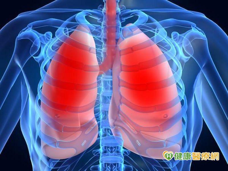 每年一次胸部X光 可有效發現早期肺癌?