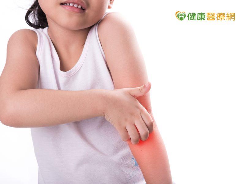 連日高溫悶熱 避免濕疹發作要這樣做