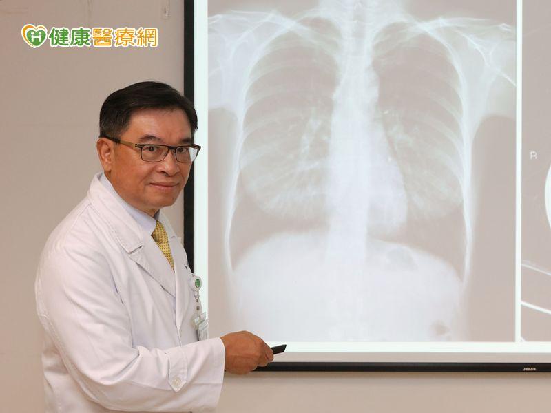 3成肺癌沒抽菸 低劑量電腦斷層揪病灶