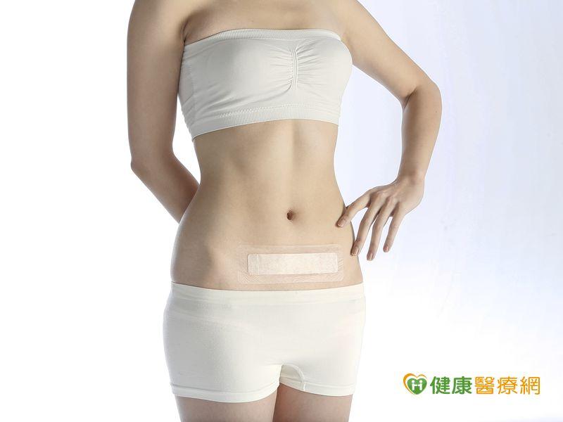 為何剖腹產會留疤? 原因大解析