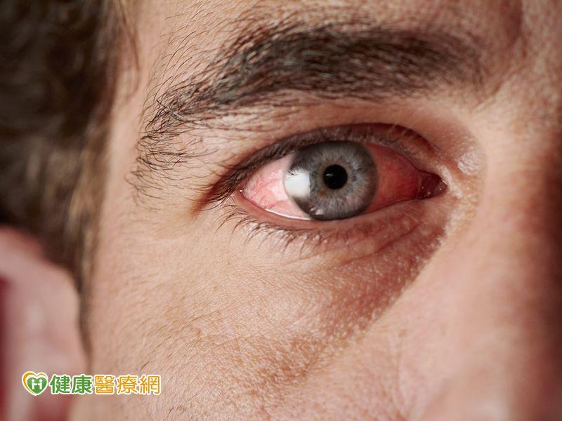 紅眼症來襲 勤洗手勿揉眼防傳染!