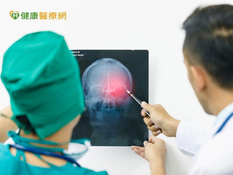 腦瘤發生原因不明 有這些症狀要留意