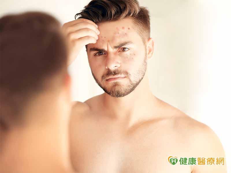 痘痘肌醜臉蛋 三種體質最常見