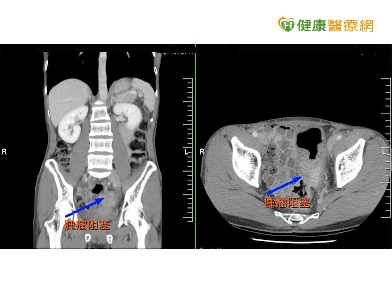 大腸癌年輕化 腹脹血便是徵兆