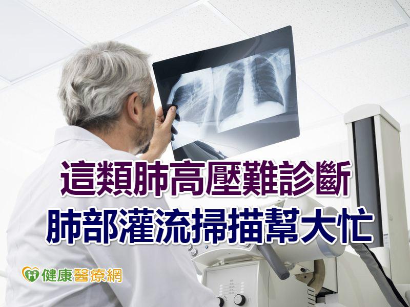 這類肺高壓難診斷 肺部灌流掃描幫大忙