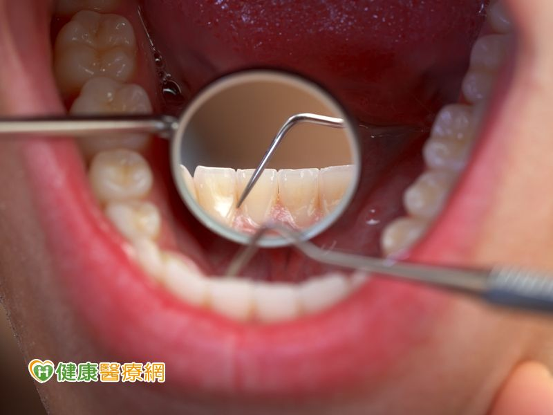 還在用醋洗牙結石? 正確潔牙卡實在