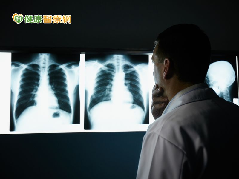 腰痠背痛好不了? 恐是肺癌骨轉移作怪