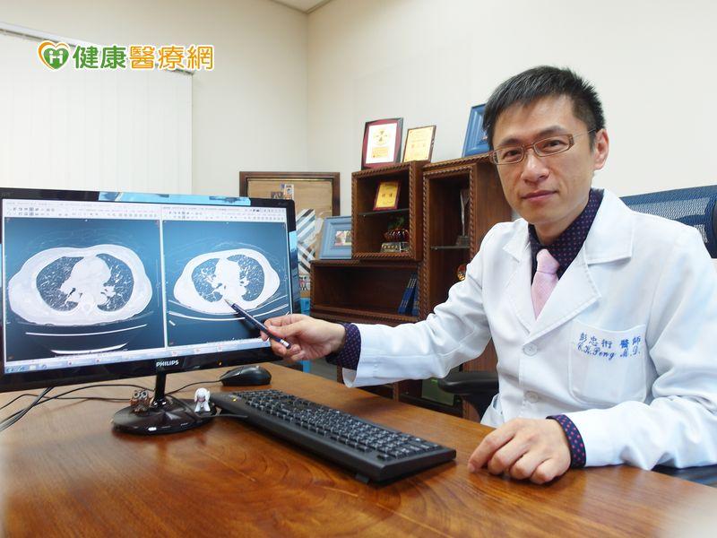 嚇! 婦人頸椎被癌細胞吃塌陷才知肺癌末期