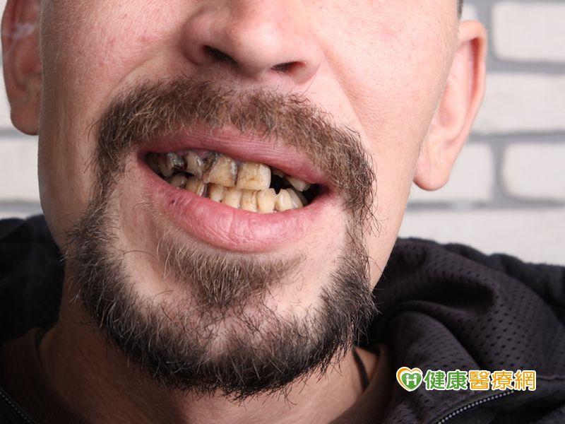 9成口腔癌嚼檳榔 防治口腔癌從戒檳開始
