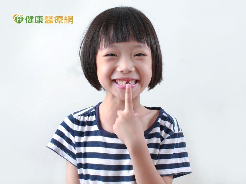當心年幼異常口腔習性 易成前牙開咬