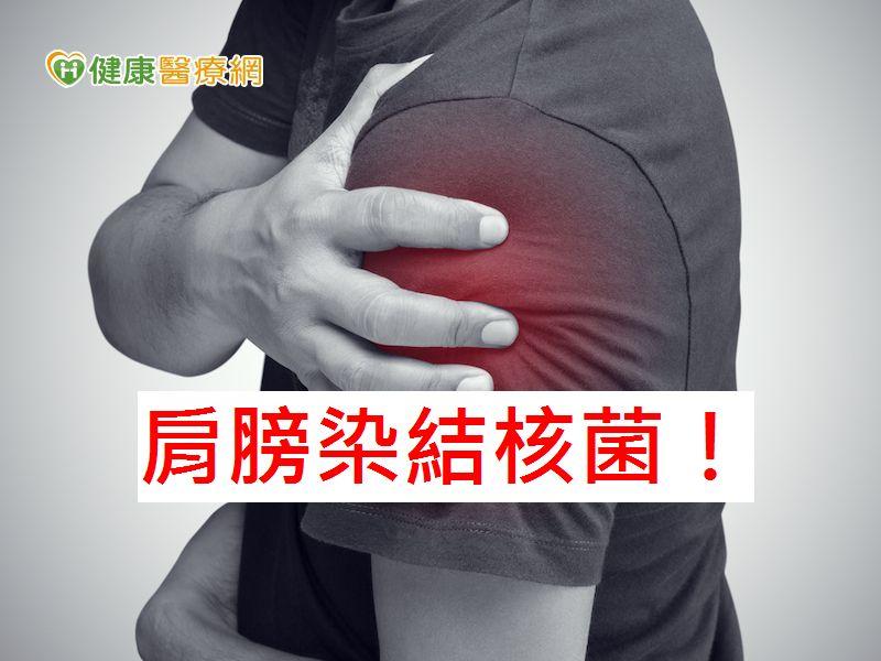 80歲老翁左肩腫脹 竟是結核菌惹禍