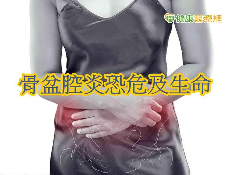 下腹痛合併發燒 骨盆腔炎恐危及生命
