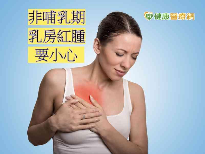 膿瘍 乳腺
