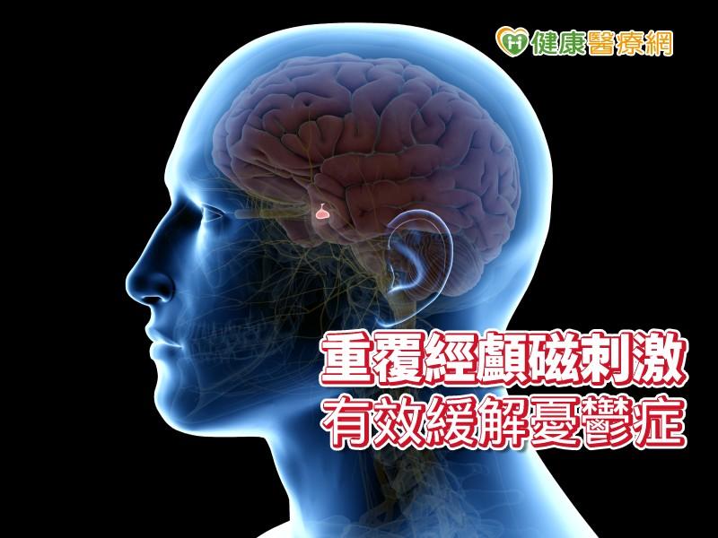 重複經顱磁刺激 免吃藥擺脫憂鬱症