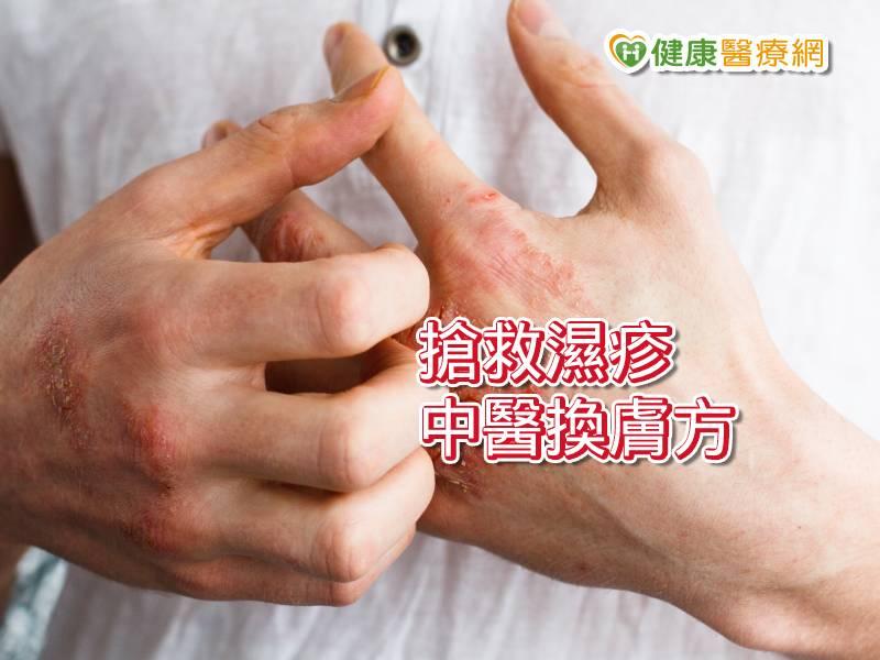 中醫一帖換膚方 濕疹十年有解