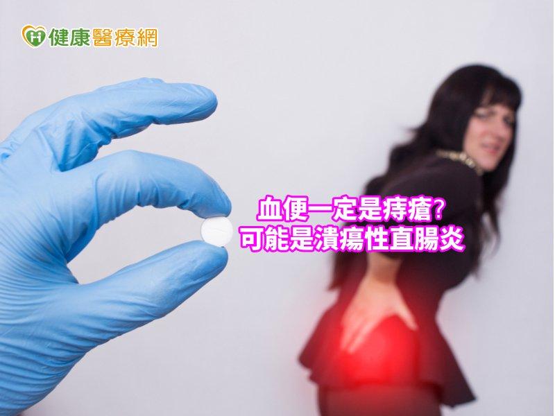 血便不一定是痔瘡 潰瘍性直腸炎也會引起