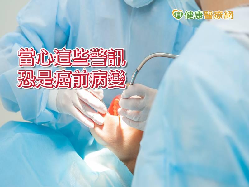 口腔黏膜出現「這警訊」 小心口腔癌病徵