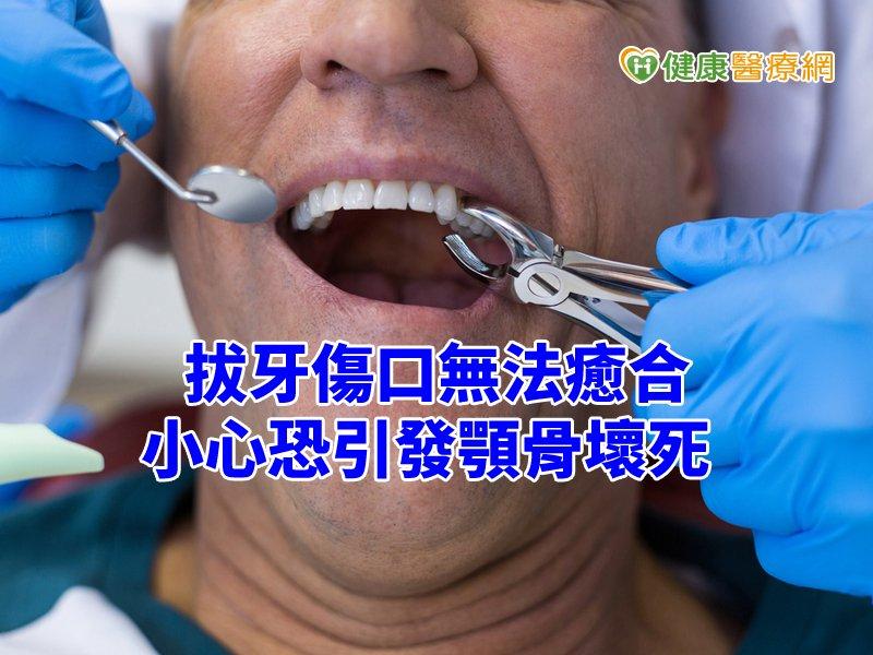 拔牙後傷口加劇 原來是「這成分」副作用惹禍