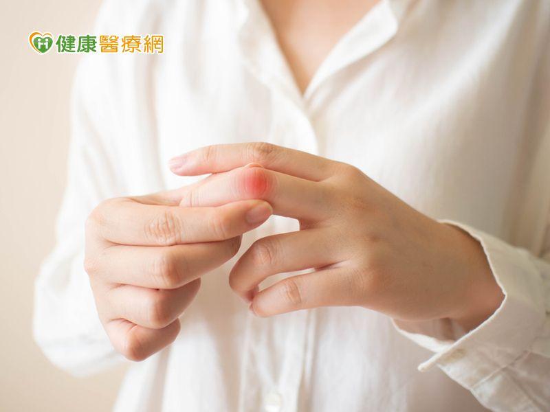 3徵兆恐是乾癬性關節炎作亂 醫:提防關節變形謹記336