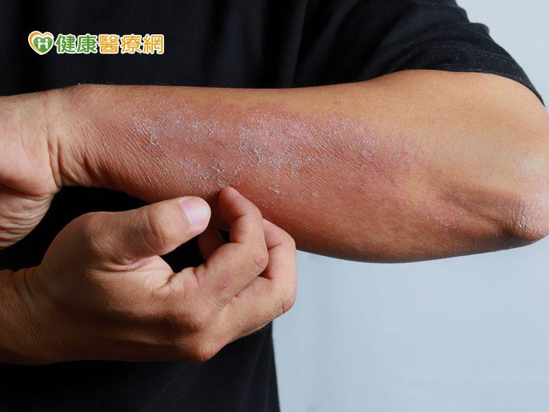 異位性皮膚炎癢亂抓! 小心蜂窩性組織炎