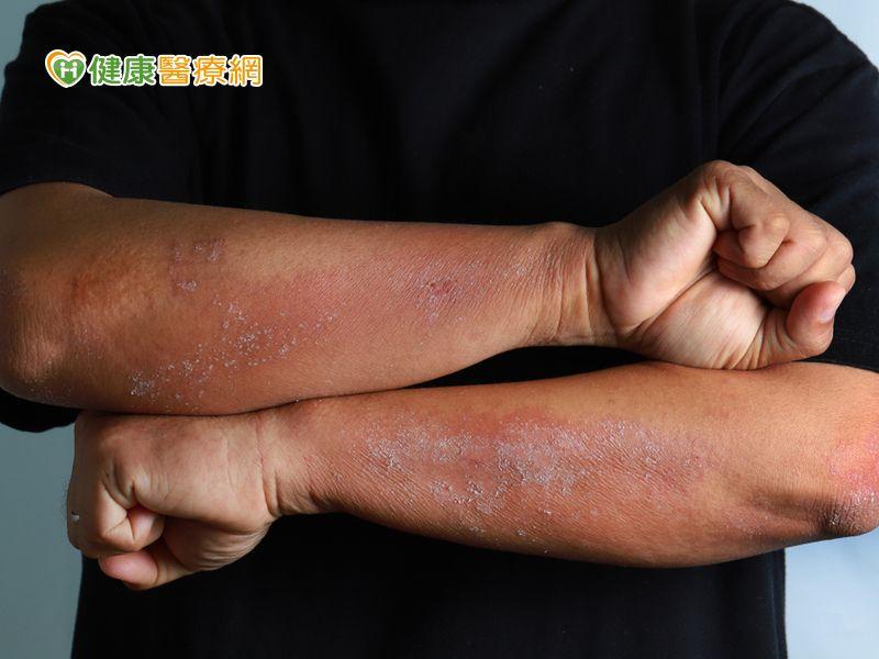 大學生飽受皮膚炎所苦 癢到一度休學無法念書
