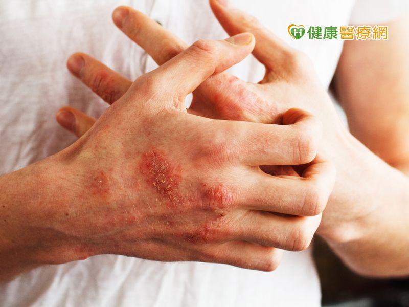 惱人乾癬驚現香腸指 對症治療提升生活品質