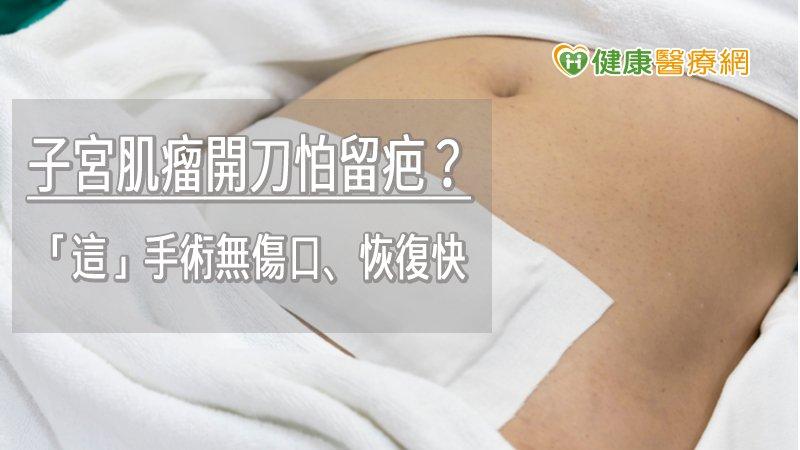 鏡 手術 腹腔