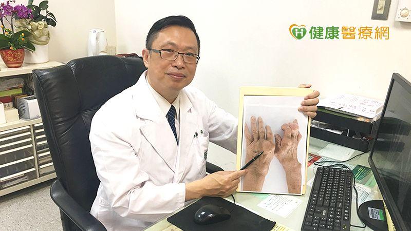 類風濕性關節炎積極治療 面對「關節炎之王」也不怕