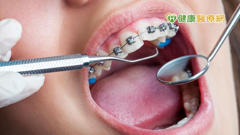 齒列不正只是不美觀? 牙醫曝還有「這些問題」