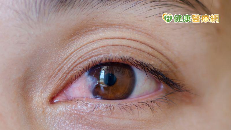 眼睛白白一層不是白內障 小心眼翳病上身