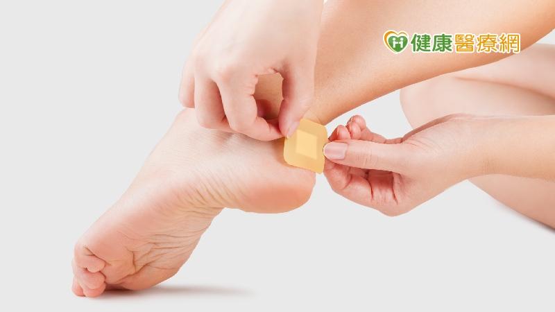 腳部起水泡超難受 預防水泡有五招
