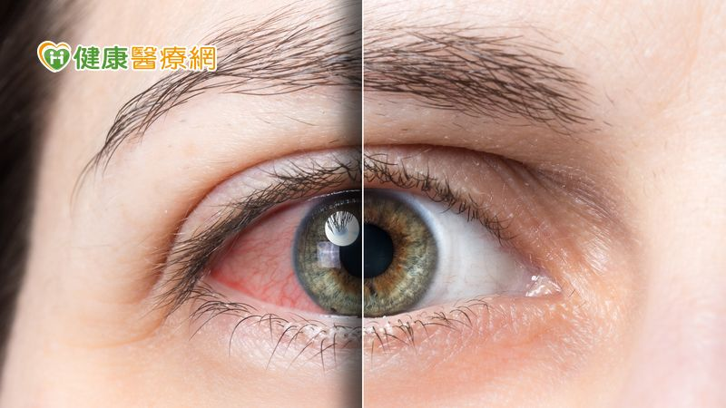 市售眼藥水治標不治本? 不當糊矇族 醫師帶你戰勝乾眼疾病