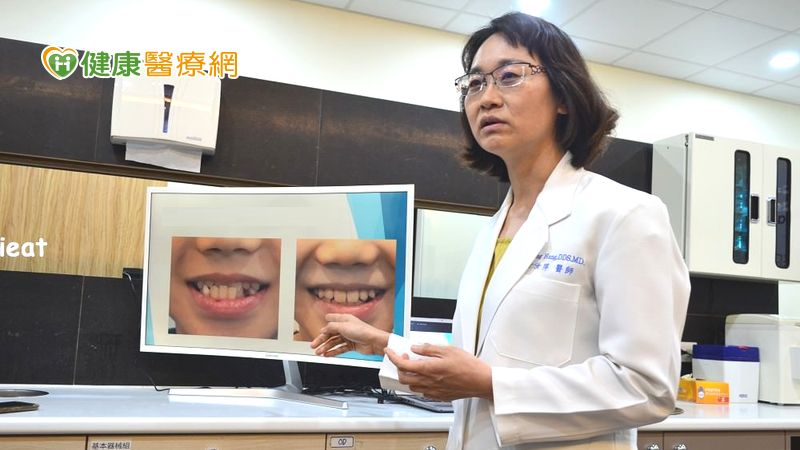 牙齒亂等長大再矯正? 醫師籲:『有幾種情況,矯正不能等!』