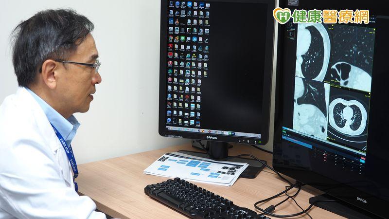 推廣低劑量電腦斷層篩檢 改善肺癌高死亡率
