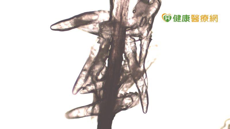 用眼過度也會長蟲蟲? 防疫期眼瞼螨蟲患者增