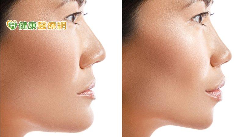 正顎手術風險大、恢復慢? 數位醫療精進技術助找回自信