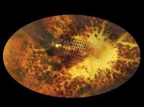人工視網膜為盲人帶來光明 「鷹眼」成真