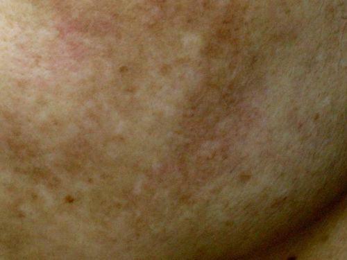 過度雷射 除痘疤反致皮膚發炎變黑