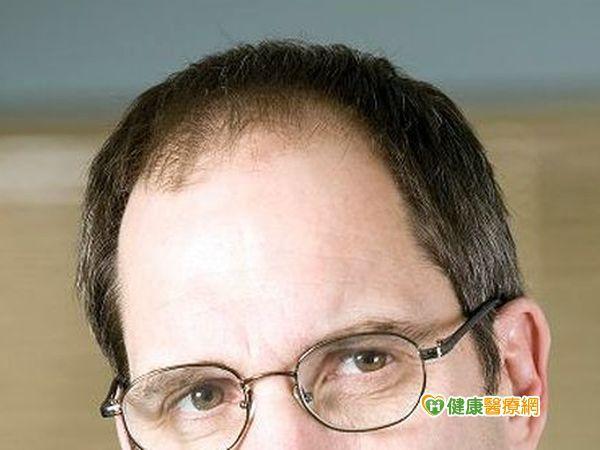 洗髮精可生髮? 醫:延誤治療恐掉光