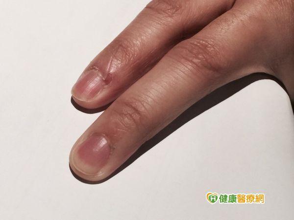生理期指緣乾燥滲血 當心肝臟排毒功能低下