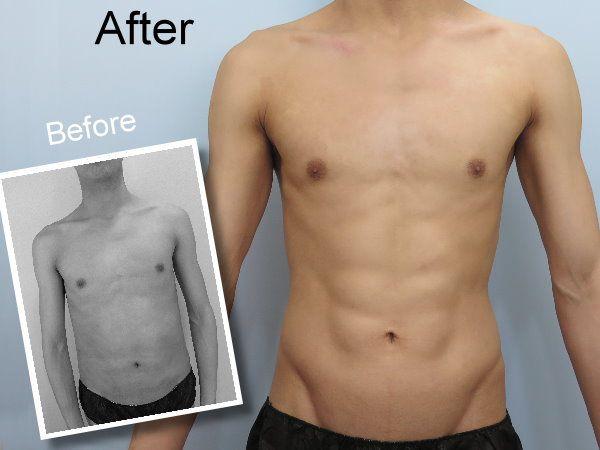 大肚男威塑脂雕改造 驚現完美六塊肌馬甲線